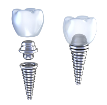 A diagram of how dental implants work.