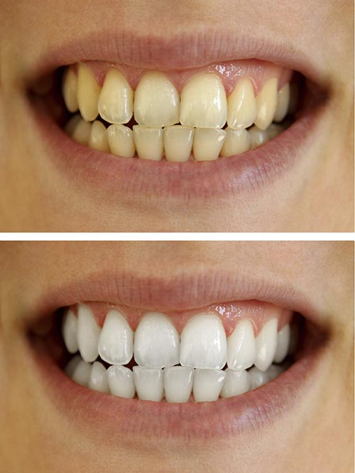 A patients teeth before and after using a whitening treatment.